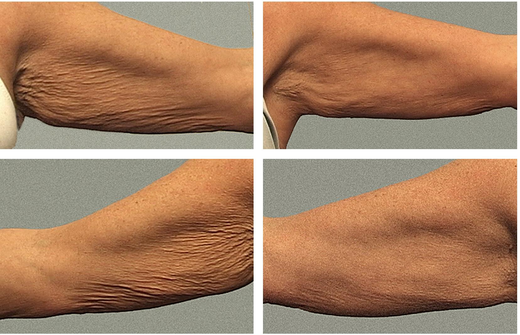 Daži veidi, kā savilkt ādu pēc svara samazināšanas